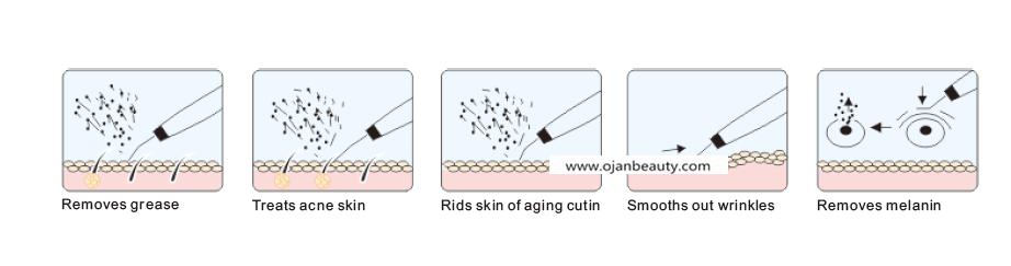 Rechargeable Skin Scrubber/ Skin Peeling Ultrasonic Skin ...